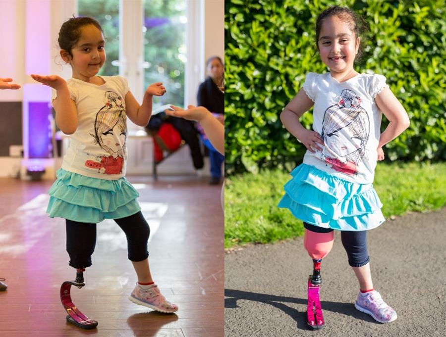 Young Who Amazed Clmates With New Prosthetic Running Blade Pursues Her Pion For Dancing Storytrender