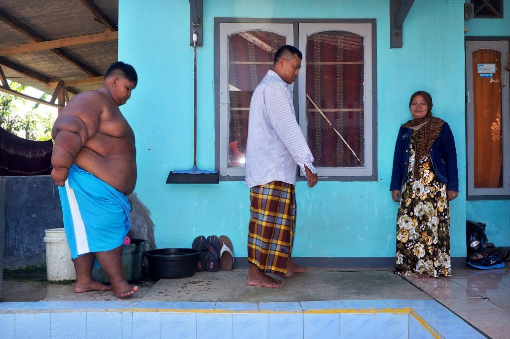 Indonesian Boy Who Once Weighed 192 Kilos Undergoes