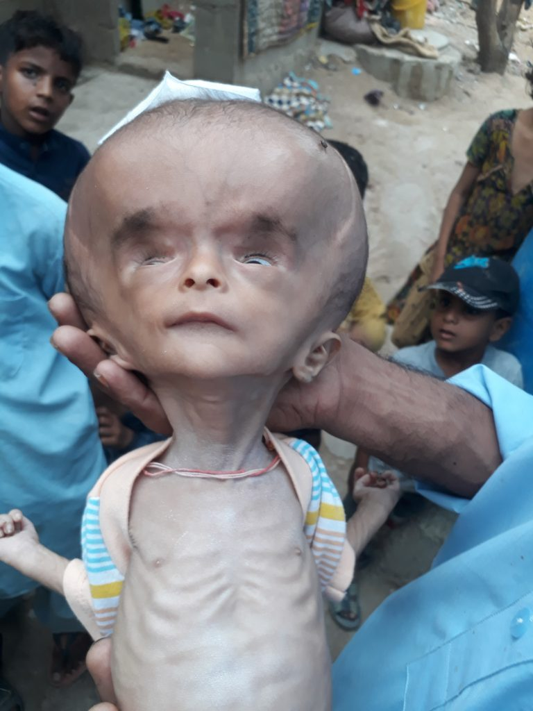 pakistani baby with head the size of football awaits life