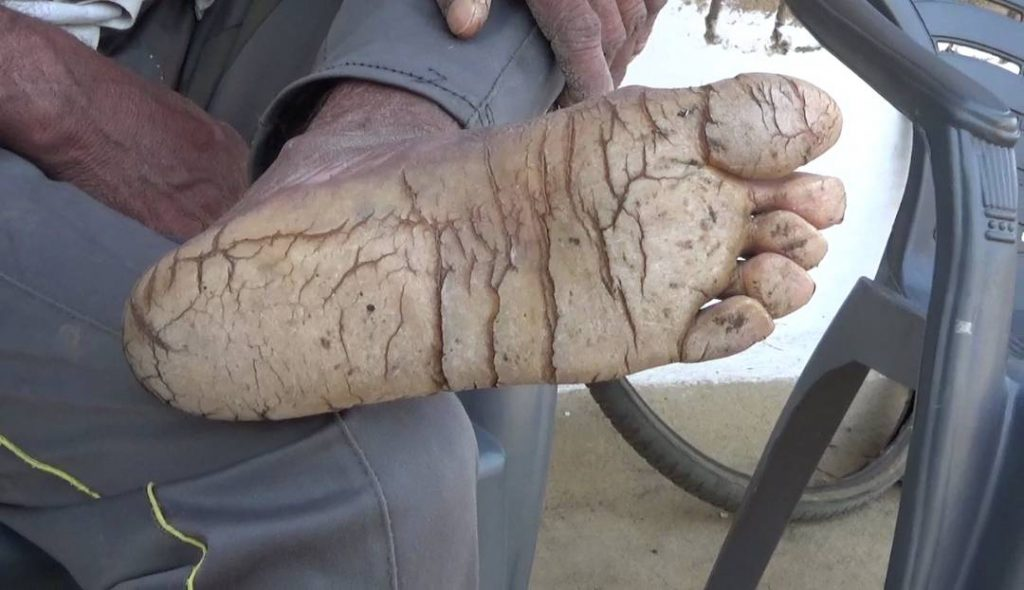 Rare skin disease is turning five members of indian family into pic by caters news publicscrutiny Choice Image