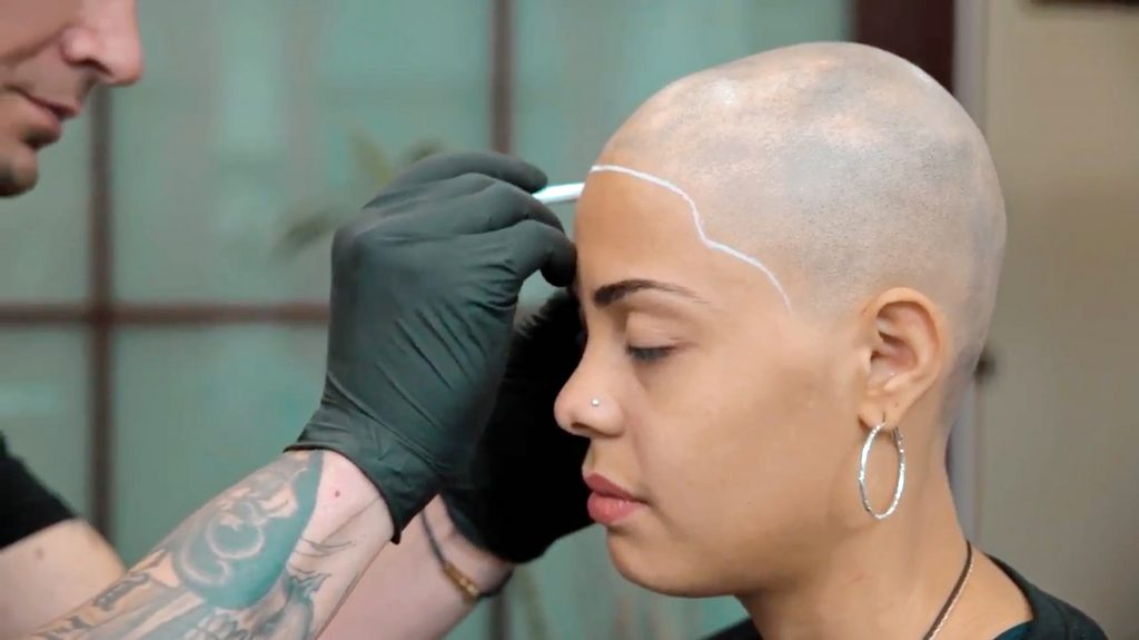 Alopecia sufferer bullied for 39 bald spots 39 embraces for Tattoo bald spot
