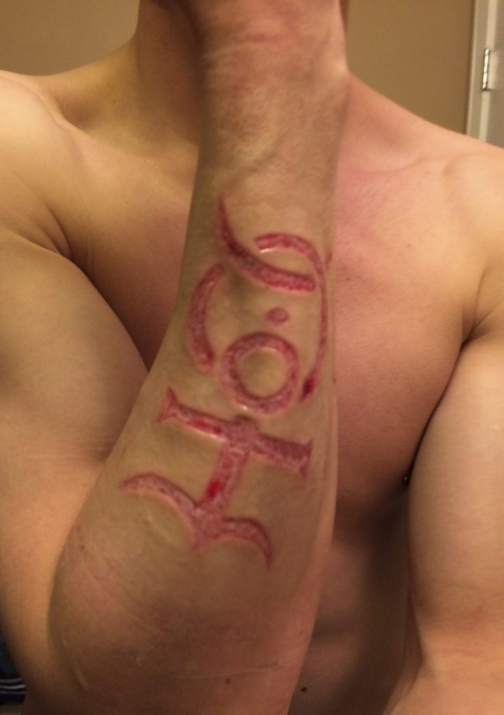 Bizarre Trend Sees Tattoo Fans Asking Permanent Scars On Their Body For New Body Art Extreme