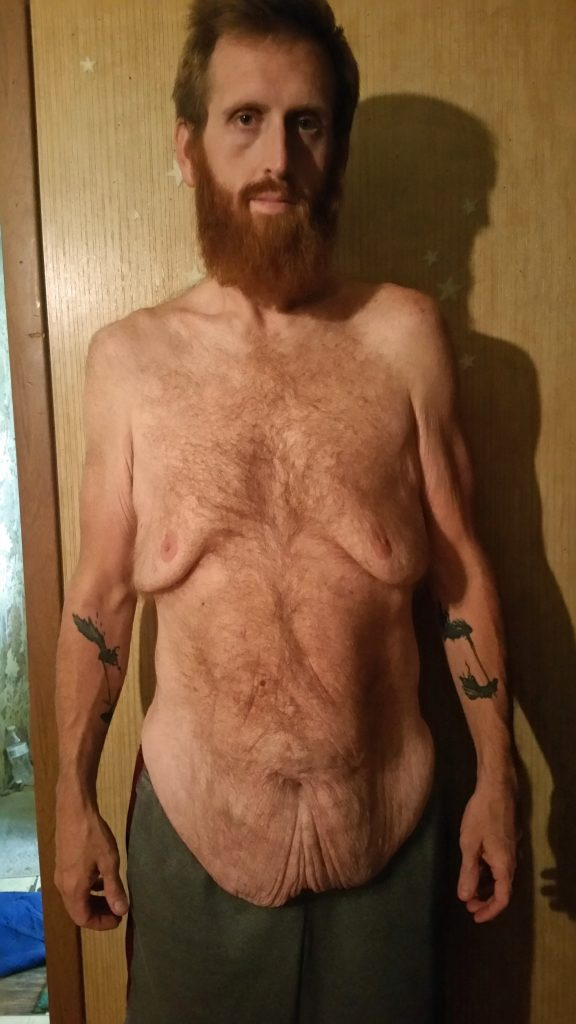 Flab To Abs Father Who Nearly Ate Himself To Death Reveals