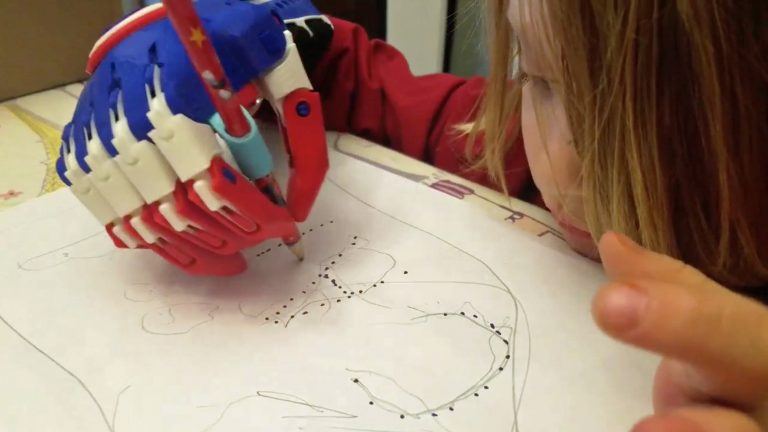 Adorable five-year-old designs and creates 3D hands for kids with limb  differences – Even making special holder for nerf gun, kitchen utensils and  pencils