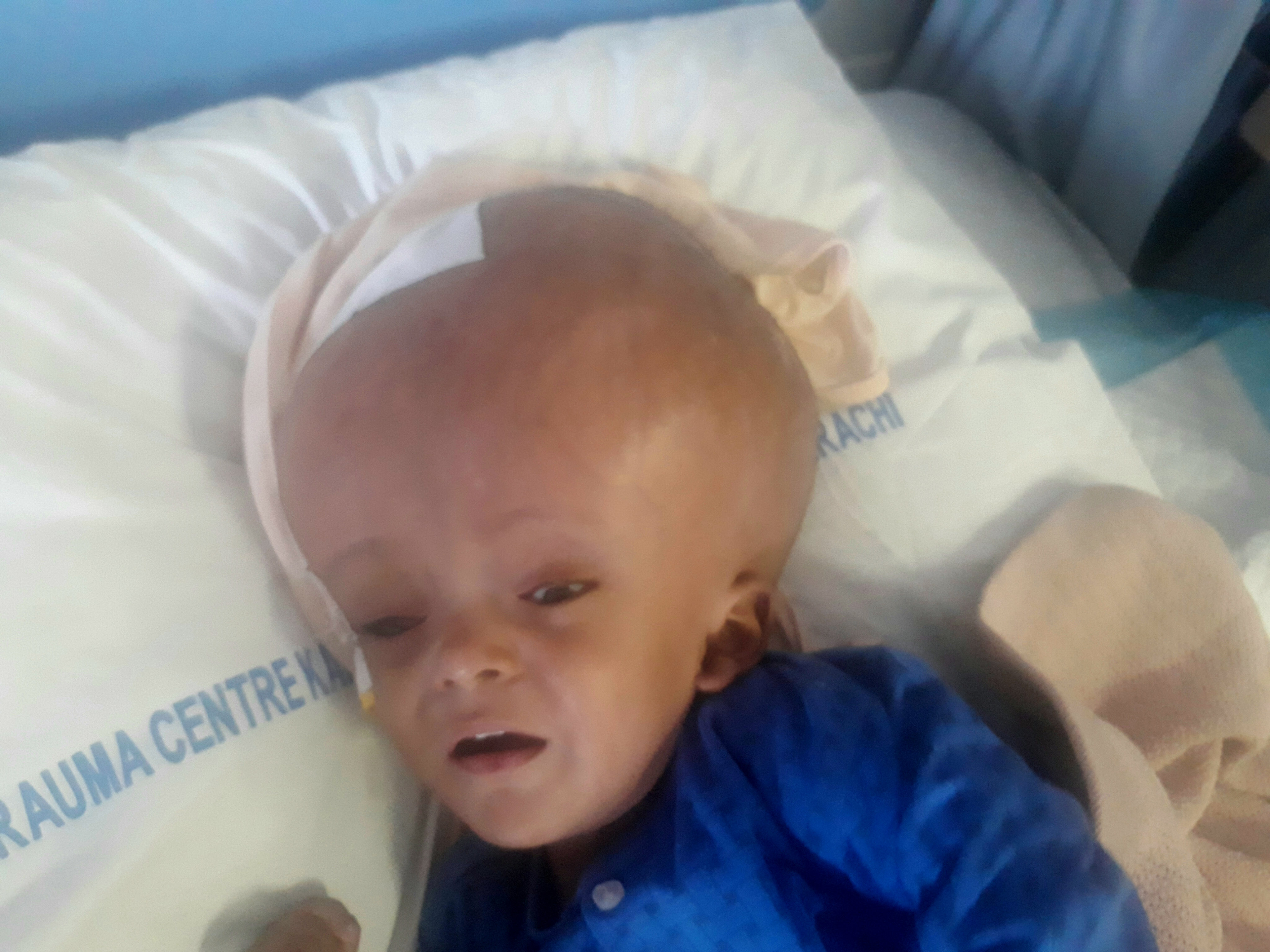 Pakistani baby with head the size of football awaits life changing surgery storytrender