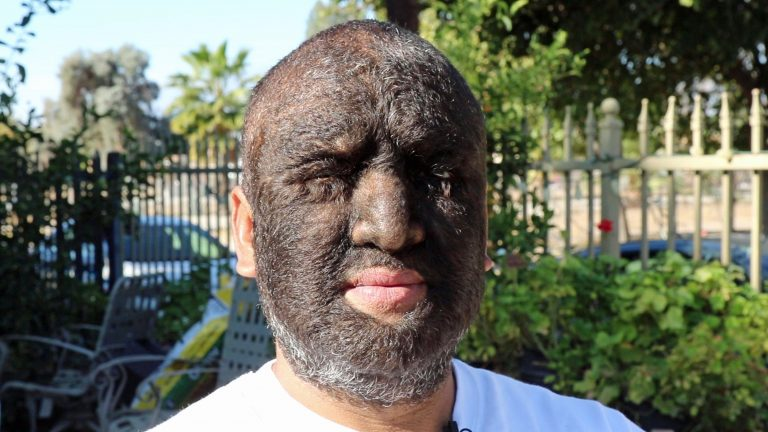 World S Hairiest Man 98 Of Body Including His Face Is Covered In Hair Thanks To Rare Condition Leaving Him Be Labelled A Real Werewolf