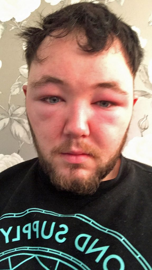 Man Left Looking Like An Alien After Face Swells And He Is