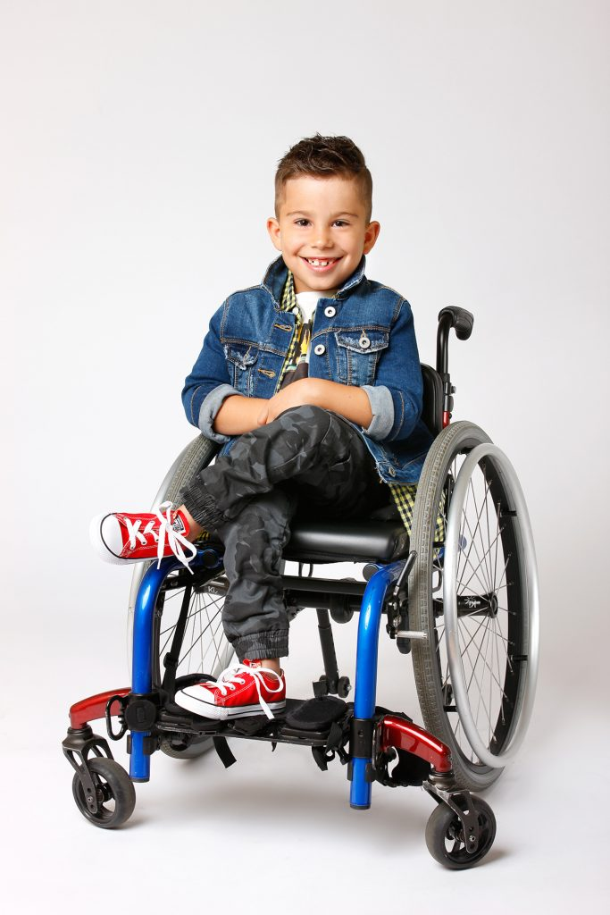 Adorable Young Boy Born Bent In Half Due To Defect Defies