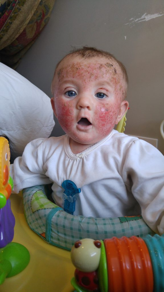 Baby battles 'living hell' as her skin burns, peels off and