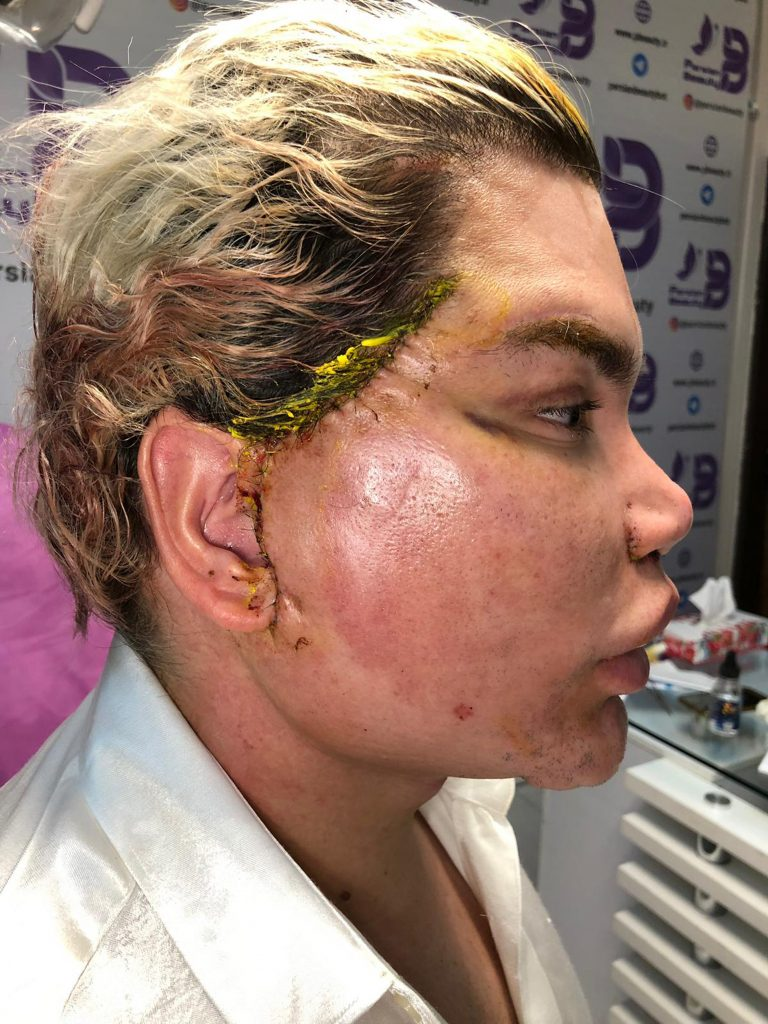New year, new face! Rodrigo Alves warns others about spider