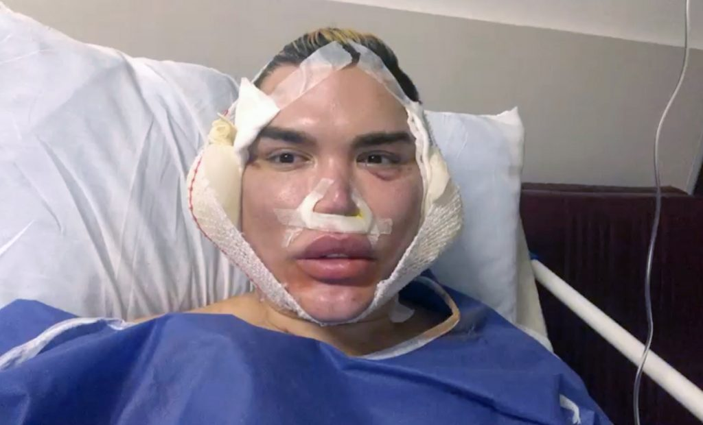 New year, new face! Rodrigo Alves warns others about spider web