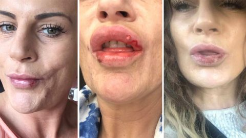 Botched! Mum issues lip filler warning after surgery leaves her lips covered in sores and scars Image