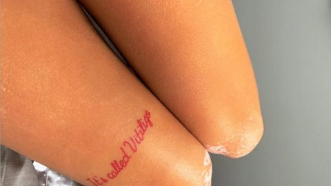 Vitiligo Sufferer Who Confused Condition For bad Tan Lines Gets Tattoo Explaining Disease To Stop People Staring Image