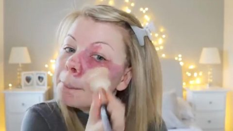 Young Woman With Birthmark Left Furious After Claiming Make-up Brand Stole Her Footage To Promote Their miracle Foundation Image