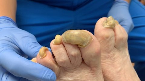 NAILED IT! DOCTOR TACKLES HUGE OVERGROWN NAIL AND FUNGAL INFECTION IN SATISFYING TREATMENT VIDEO Image
