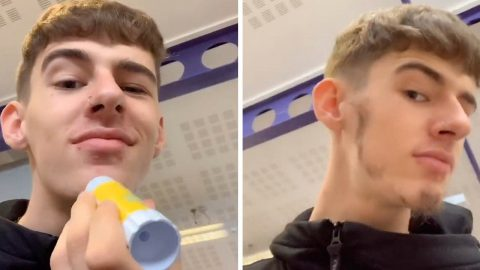 TEEN GLUES LEG HAIR TO FACE TO TRY AND GIVE HIMSELF BETTER BEARD Image