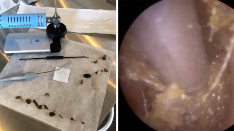 AUDIOLOGIST CLEARS OUT COLOSSAL AMOUNT OF EARWAX THAT HAD LEFT PATIENT ALMOST DEAF Image