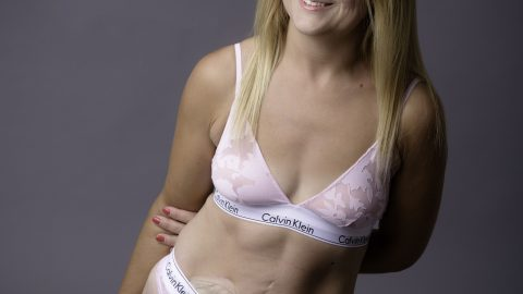 MUM-OF-TWO WITH COLOSTOMY BAG PRAISES CALVIN KLEIN UNDIES FOR MAKING HER FEEL 'SEXY IN BEDROOM Image