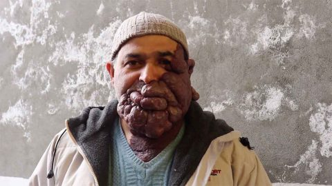 MAN WITH HUGE TUMOUR RAVAGING HIS FACE IS DESPERATE TO FIND LOVE Image