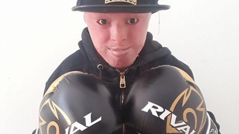 TEEN WITH RARE SKIN CONDITION TAKES UP BOXING TO OVERCOME BULLIES Image