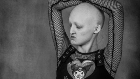 DEAF AND BALD TEEN BECOMES MODEL DESPITE HORRENDOUS BULLYING Image
