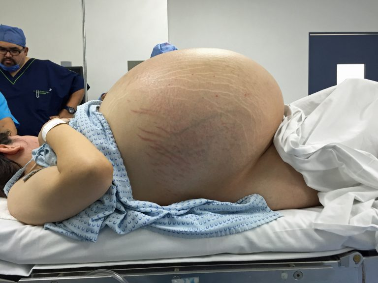 largest cyst removed