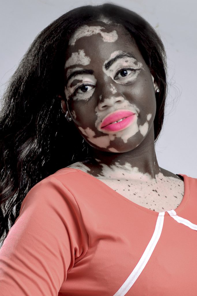 dating site for vitiligo Discrimination and social stigma are often associated with vitiligo there are also dating platforms for people with vitiligo which are gaining momentum this important article giving information regarding matrimonial sites.