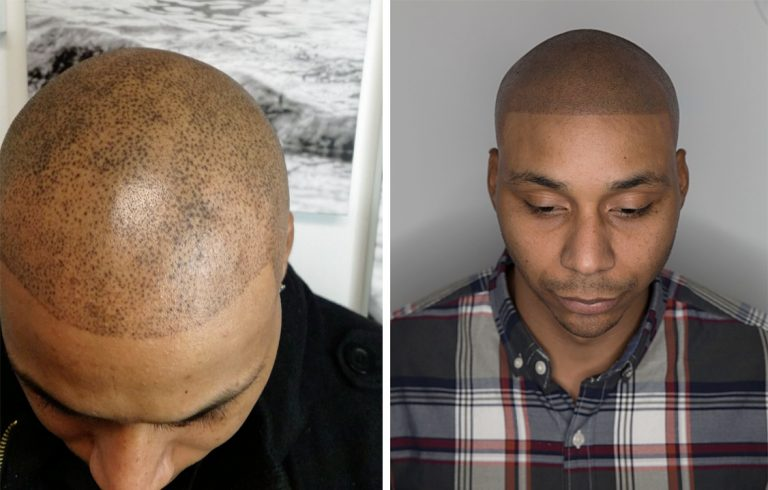 Balding Barber Whose Horrific Fake Hair Tattoo Described As World S Worst Attempt Because It Looks Like Droplets Of Paint Gets Fix #hairdare #tattoo #inkedgirls #hairstyles #women #baldisbeautiful. balding barber whose horrific fake hair