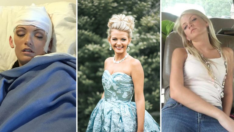 Meet The Real-Life Sleeping Beauty Whose Rare Condition
