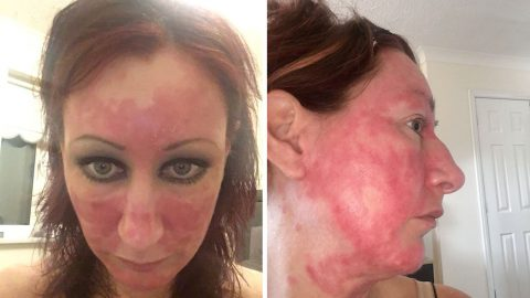 Mum-of-two reveals near four-year battle with skin burning that looked like an 'acid attack' after quitting steroid creams Image