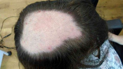 Nurse left with grapefruit sized bald patch on scalp hair looks unrecognisable thanks to pioneering head mesh Image