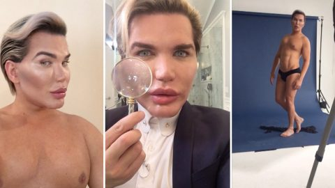 Rodrigo Alves breaks vow to quit surgery with nose reconstruction from ear to become aqua-style pop star Image