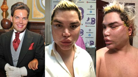 New year, new face! Rodrigo Alves warns others about spider web procedures after 200 threads and fibrosis removed during facial revision surgeries Image