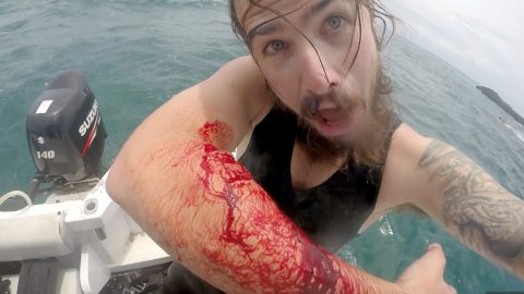 Spearfisherman left with gaping bite holes in arm after second shark attack – but still vows to return to the water Image