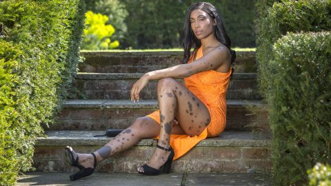 Mum Bullied For Dalmatian Skin Becomes Model After Being Scouted Online Image