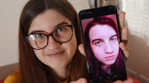 'I Don't Want To Die From Cold': Graduate With Deadly Allergy To The Cold Speaks Out After Receiving Verbal Abuse For Lifesaving Mask And Compared To A Fortnite Character Image
