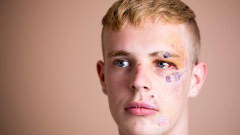 'They Told Me Gays Should Die': 22-year-old Hospitalised With Horrific Injuries In Homophobic Attack Image