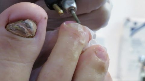 Foot doctor works miracle on badly infected fungal toes Image