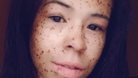 YOUNG WOMAN DUBBED HUMAN DOT TO DOT FLAUNTS HER FRECKLES ON INSTAGRAM Image