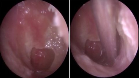 SCUBA DIVER'S EAR POPS WHILE AUDIOLOGIST TREATS HIM FOR EAR INFECTION Image
