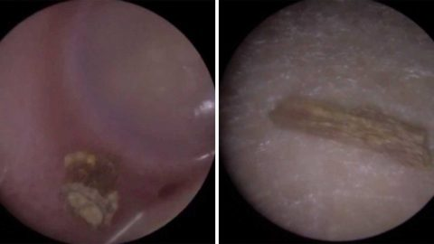 WHAT AN EARFUL! TWIG REMOVED FROM THREE-YEAR-OLD'S EAR AFTER GETTING STUCK Image