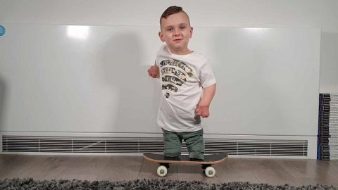 HE IS A SKATER BOY - MENINGITIS TOT WHO LOST ALL FINGERS AND LEGS LEARNS TO USE SKATEBOARD Image