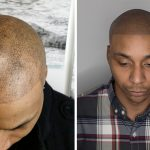 Balding barber whose horrific fake-hair tattoo described as 'world's worst attempt' because it looks like droplets of 'paint' gets fix