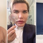 Rodrigo Alves breaks vow to quit surgery with nose reconstruction from ear to become aqua-style pop star